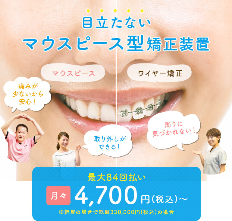 目立たない・安いマウスピース型矯正装置なら大阪市のみやけ歯科医院へ