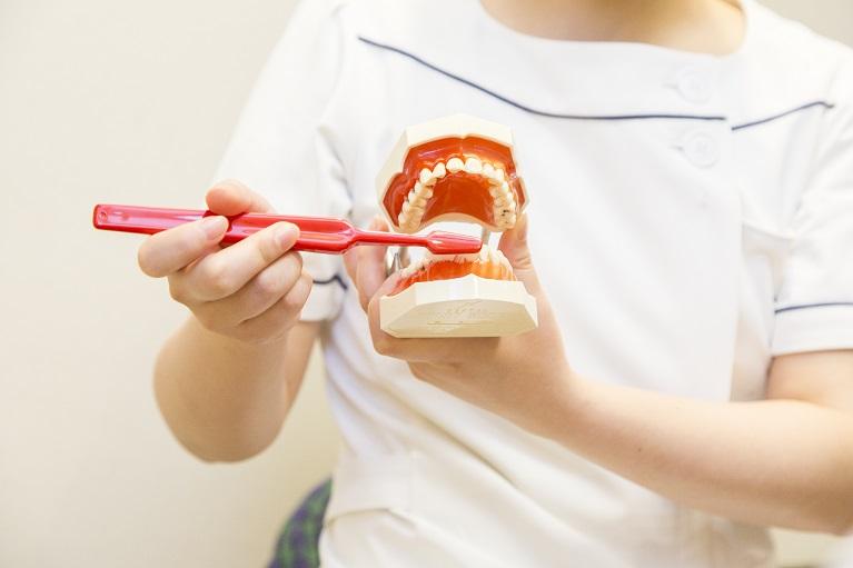 歯肉炎⇒プラークコントロール
