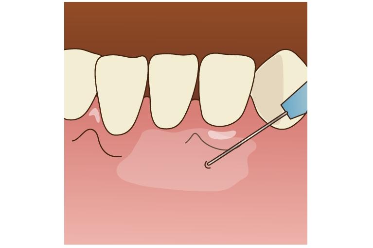 2.電動麻酔注射を使用(極細の針)
