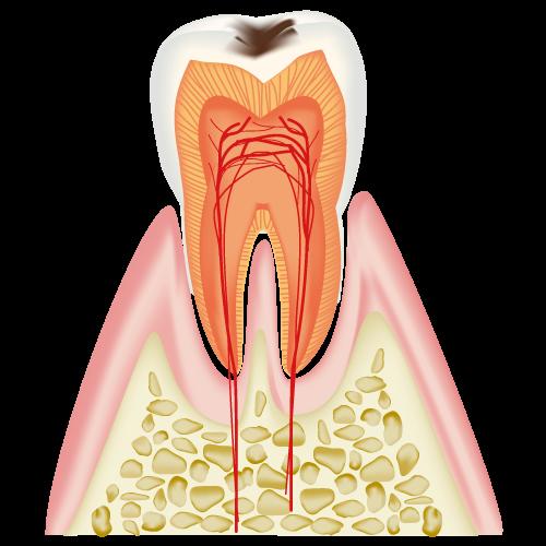 C1(初期の虫歯)