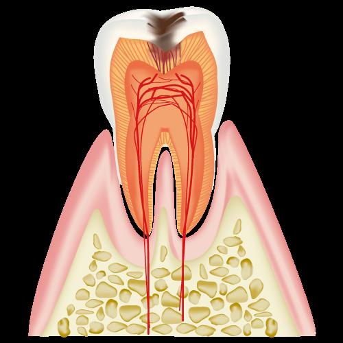 C2(中程度の虫歯)
