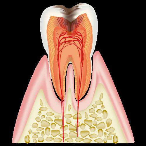 C3(後期の虫歯)