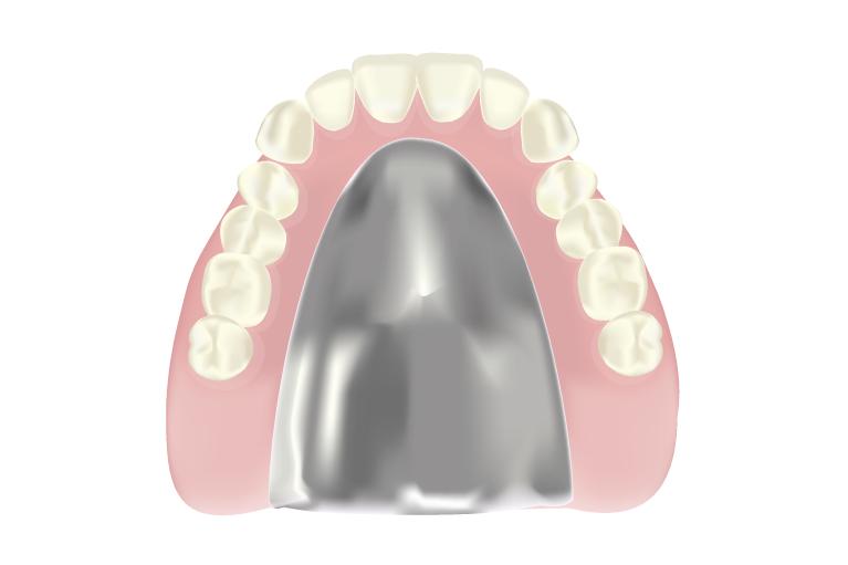 精密な型取りによる最適な入れ歯